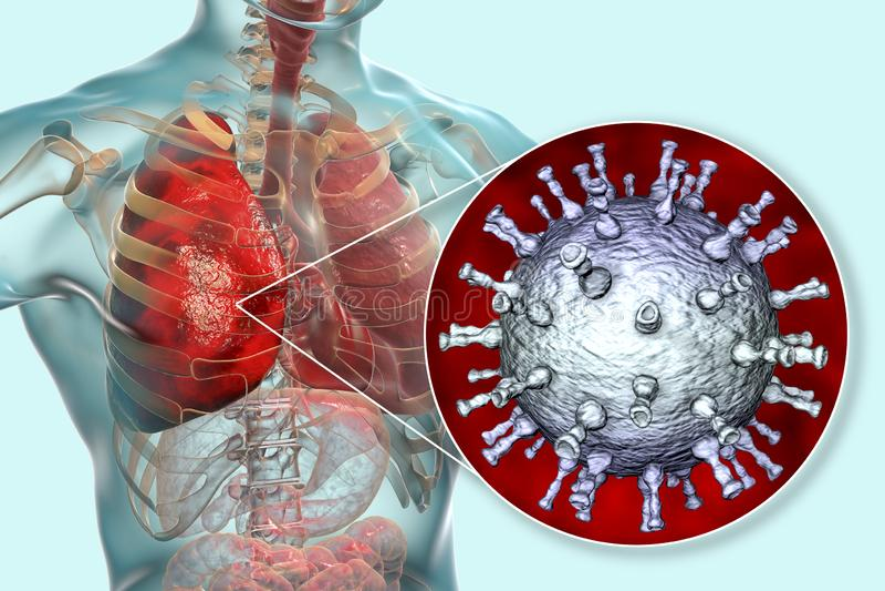 Varicella zoster virus pneumonia, chickenpox complication vector illustration
