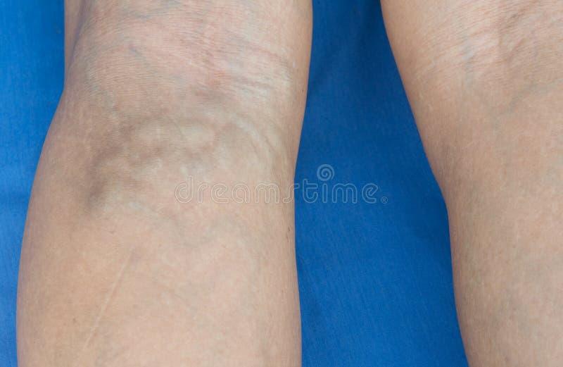 Varicose вены в ногах стоковое фото