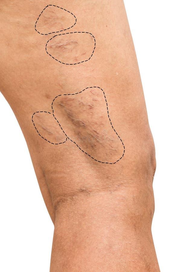 Varicose вены на женщинах ноги стоковые фотографии rf