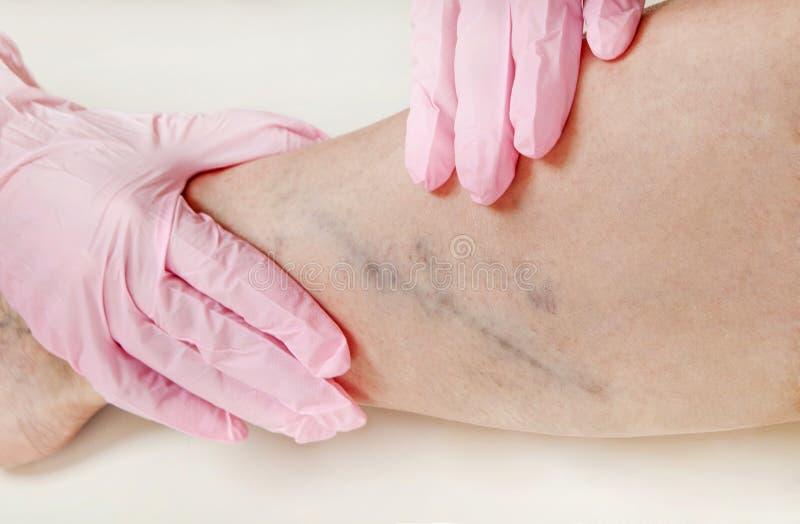 spălătorii de spălare a pielii varicose photo etape de dizabilități cu varicoză