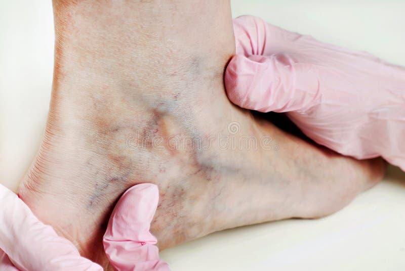 bandage wraps în varicoză tratamentul cu varicose cmb