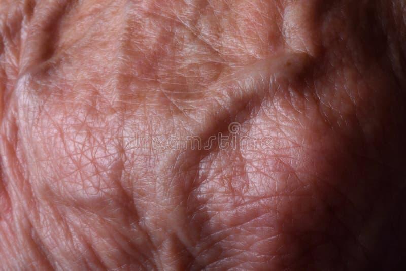 Varicose вены стоковая фотография rf