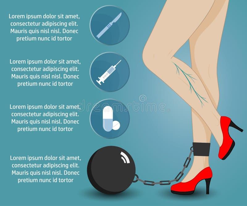Varicose_infographic stock illustratie