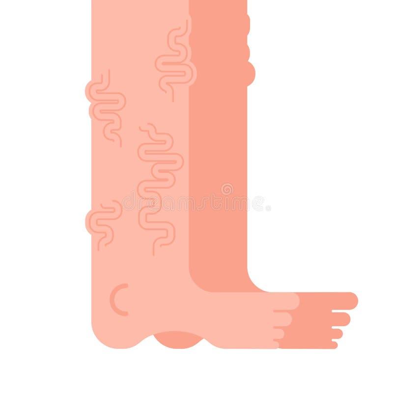 Varicose legs isolated. Veins Disease of foot. Vector illustration stock illustration