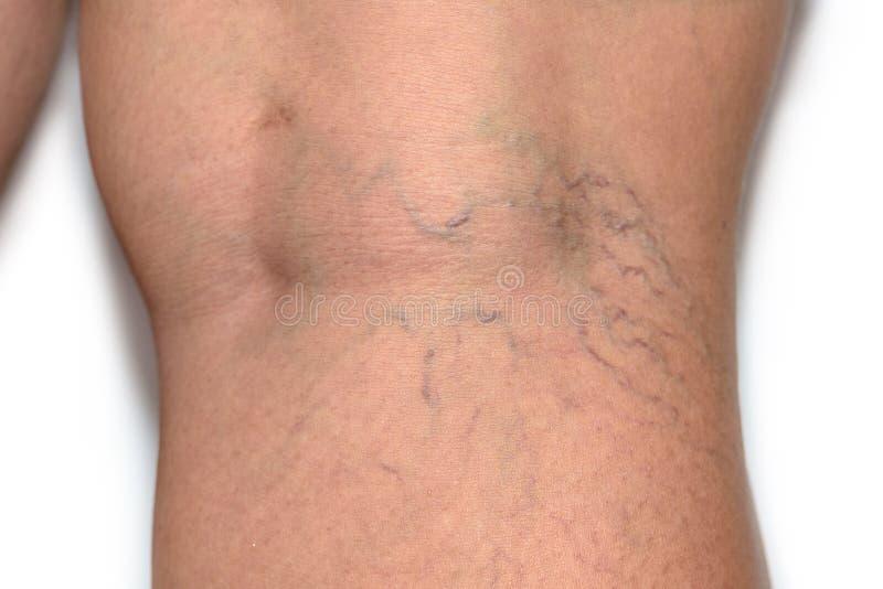 tablete din oasele de struguri varicoase cum să recunoașteți pereții varicosi pe picioare