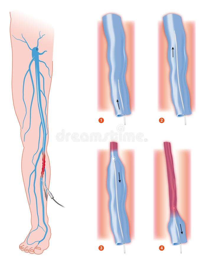 Varicose_veins Stock Photo