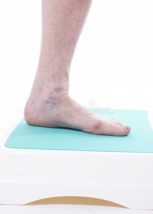 Download Varicose veins closeup stock image. Image of feet, surgery - 20132609
