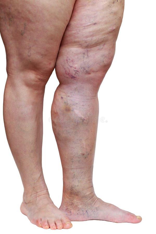 funcționarea pe picioare cu recenzii varicose vene durere la picioare cu vene varicoase reticulare