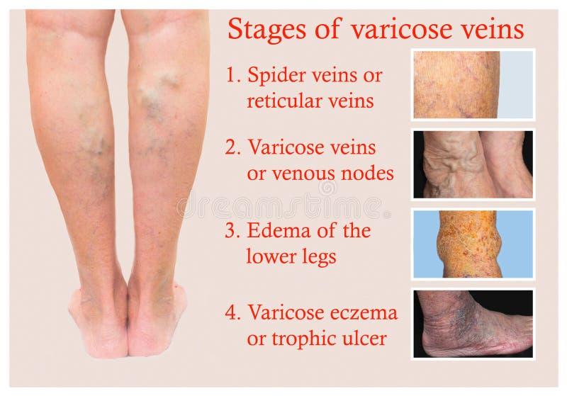 tratamentul cu varicoză tratat