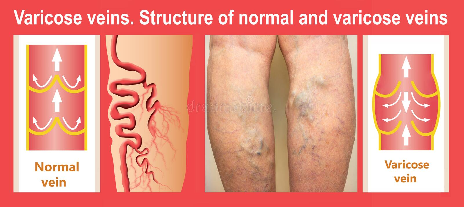 Varicose veins on a female senior leg. Collage about structure of normal and varicose veins royalty free illustration