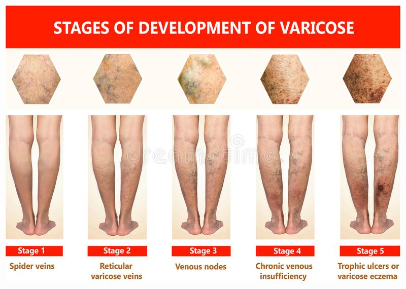 Varicose veins on a female senior leg. S. The stages of varicose veins. The old age and sick of a woman. Varicose veins on a legs of old woman. The varicosity stock photography