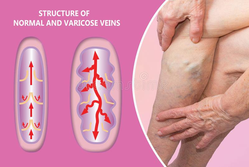 Varicose veins on a female senior legs. The structure of normal and varicose veins. Concept of dry skin, old senior people, varicose veins and deep vein stock photos
