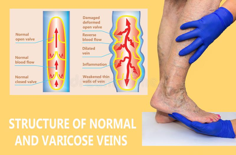Varicose veins on a female senior legs. The structure of normal and varicose veins. royalty free illustration