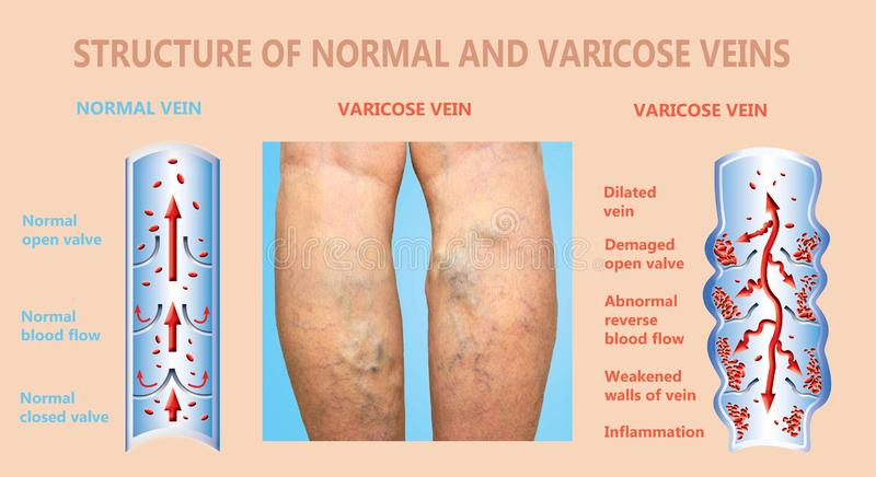 Varicose veins on a female senior legs. The structure of normal and varicose veins. royalty free stock photos