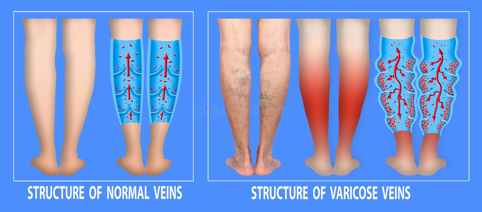 Varicose veins on a female senior legs. The structure of normal and varicose veins. stock illustration