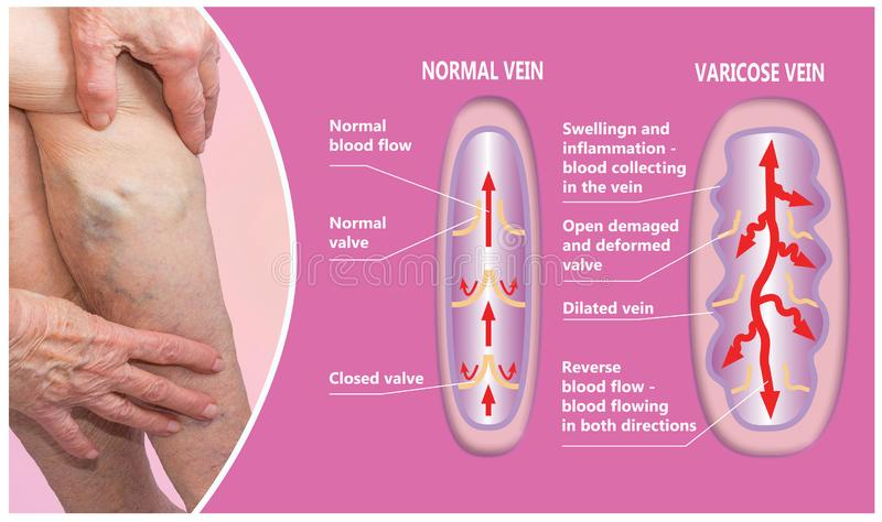 Varicose veins on a female senior legs. The structure of normal and varicose veins. Concept of dry skin, old senior people, varicose veins and deep vein royalty free stock photo