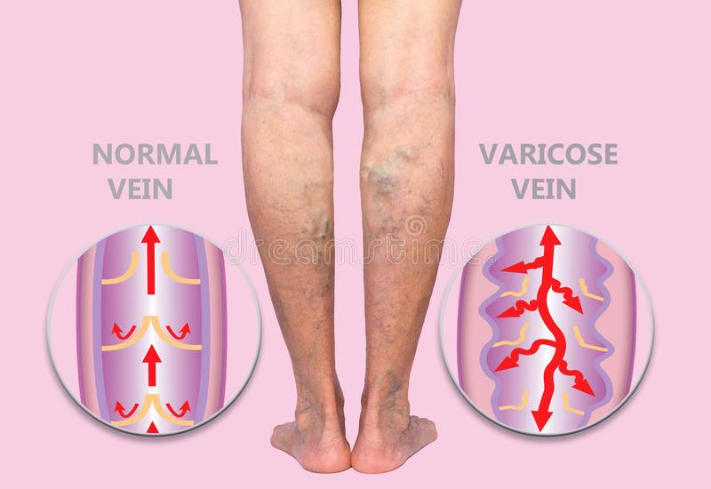 Varicose veins on a female senior legs. The structure of normal and varicose veins. Concept of dry skin, old senior people, varicose veins and deep vein stock image