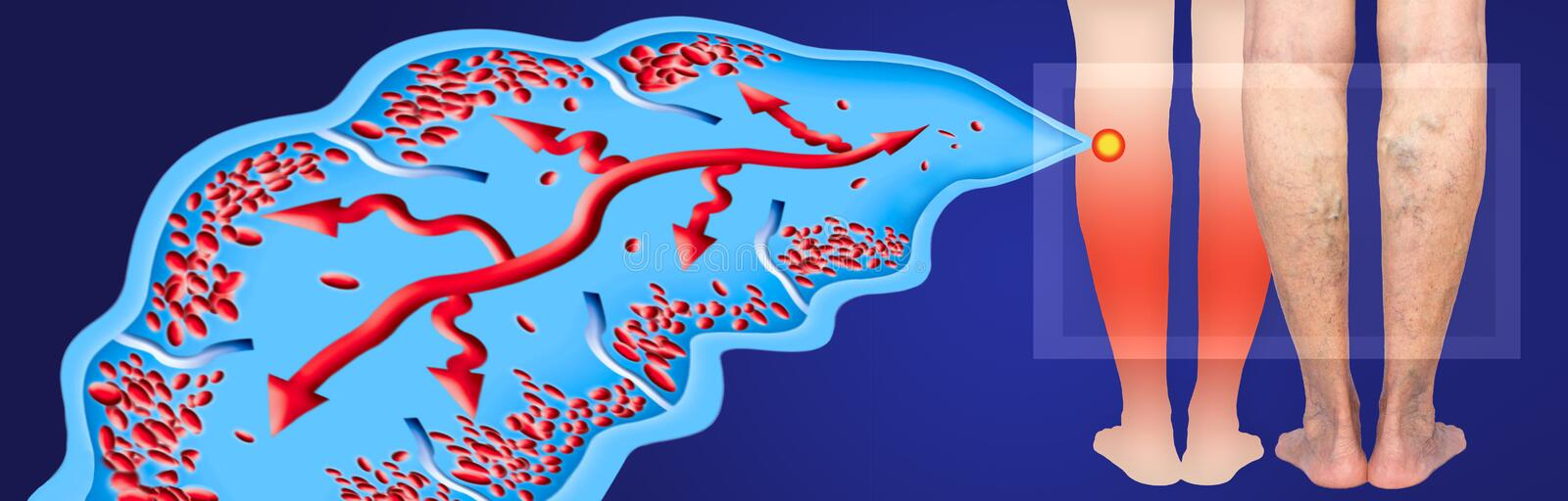 Varicose veins on a female senior legs. The structure of normal and varicose veins. vector illustration