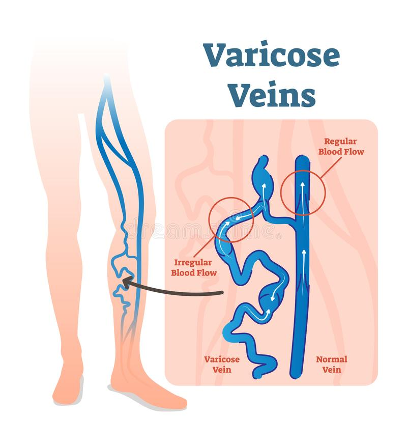 Varicose veins with irregular blood flow and healthy veins vector illustration diagram scheme. royalty free illustration