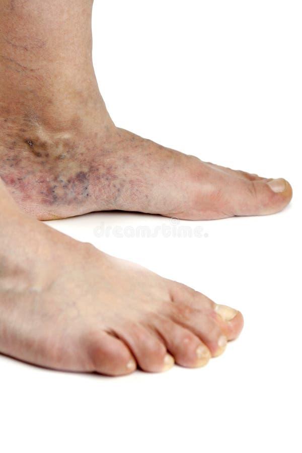 Download Varicose veins stock photo. Image of thrombosis, iusolated - 41116816