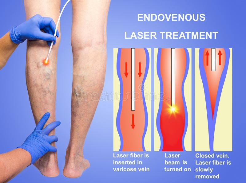 Varicose Veins and laser royalty free stock image