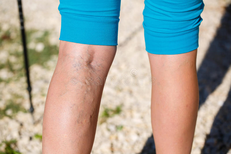 Varicose veins stock images