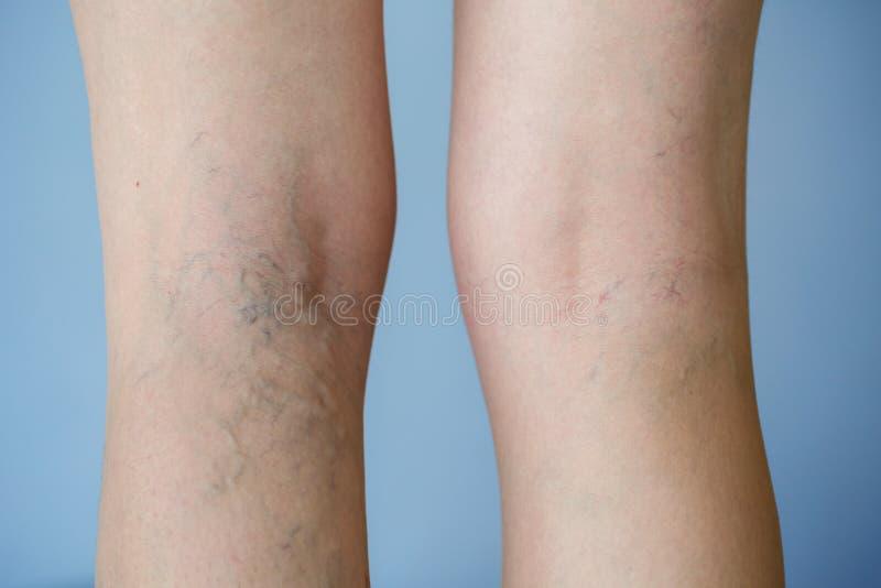 Varicose veins. On a leg royalty free stock photos