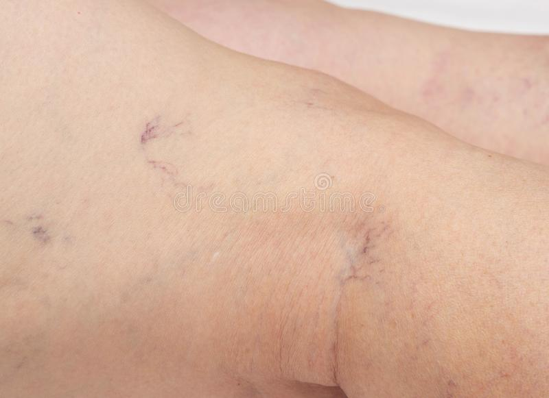 Varicose veins in the legs of an elderly woman, close-up, spider veins on the skin, thrombophlebitis royalty free stock photography