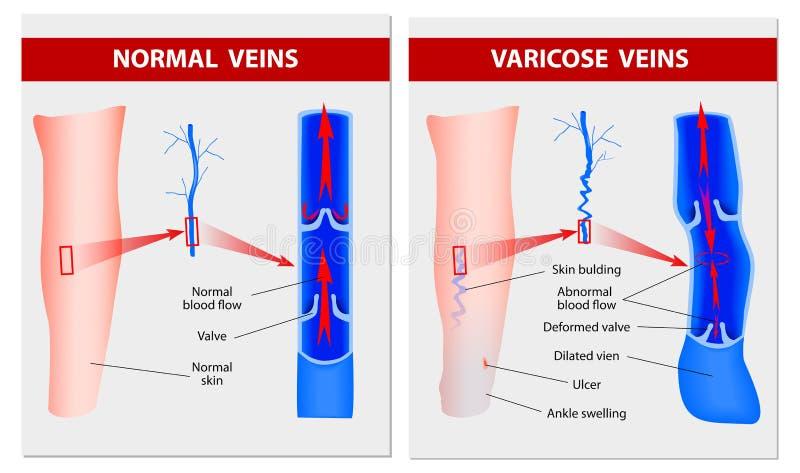 Varicose veins. Medical illustration