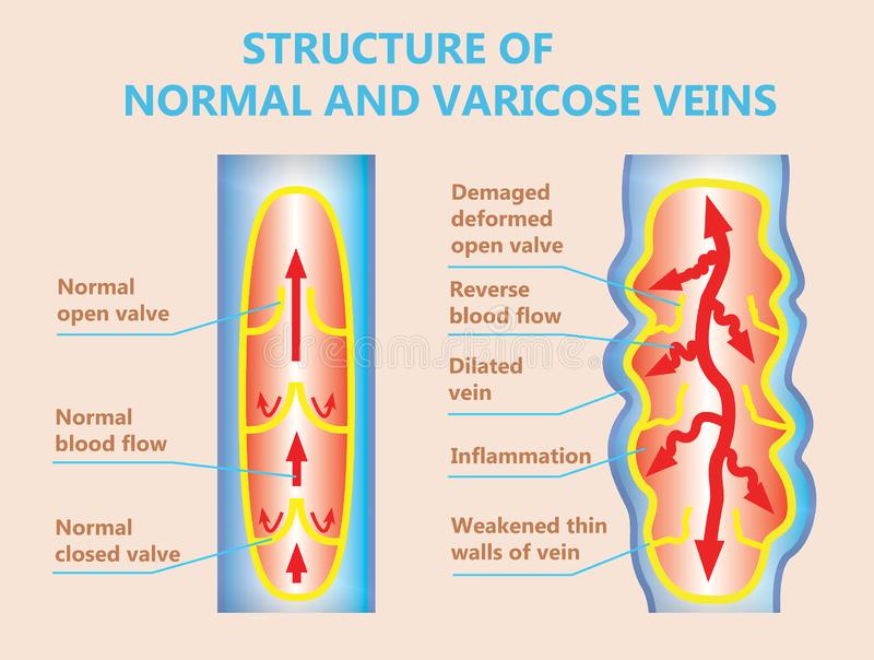 The varicose veins and normal veins stock illustration