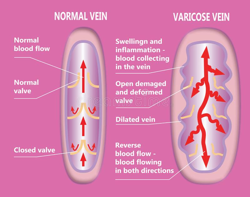 The varicose veins and normal veins vector illustration