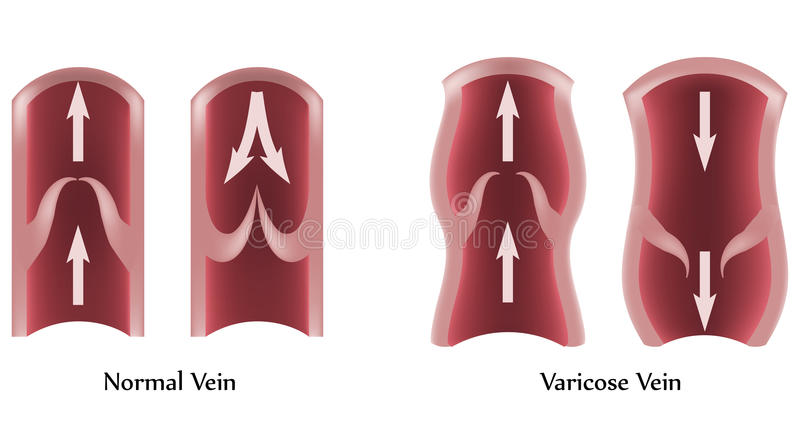 Varicose Veins and normal veins royalty free illustration