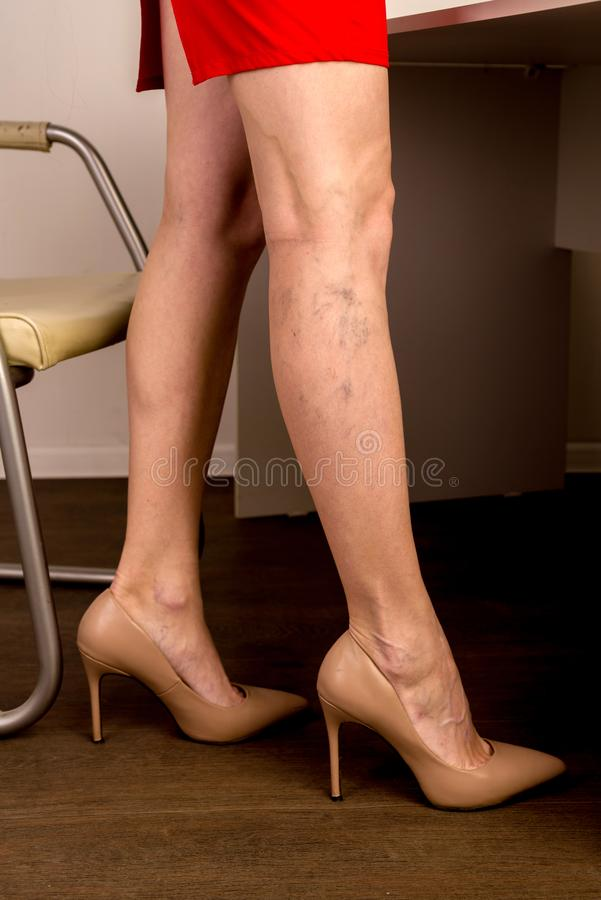 Free Varicose Veins On A Slim Female Legs. Phlebology Stock Photos - 164705773