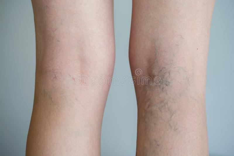 Varicose veins. Painful varicose veins spider veins, varices on a severely affected leg. Ageing, old age disease, aesthetic problem concept royalty free stock photos