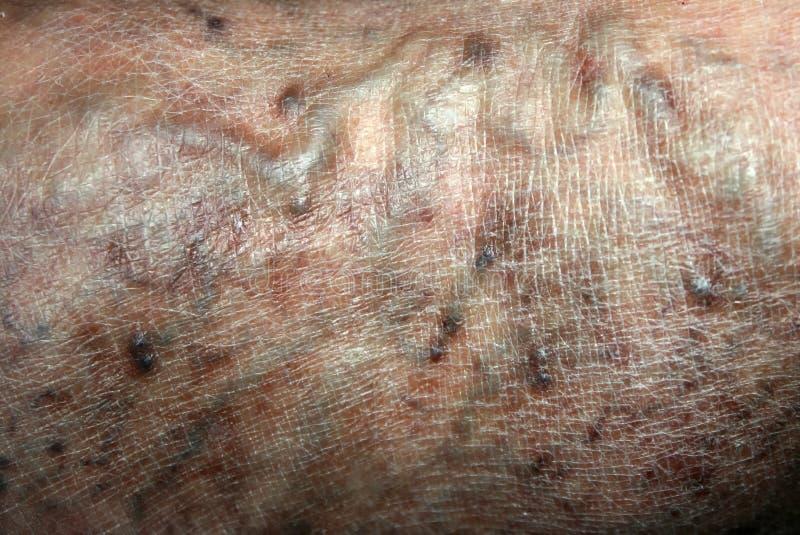 Varicose veins. Phlebeurysm. Thrombophlebitis. leg in veins royalty free stock photo