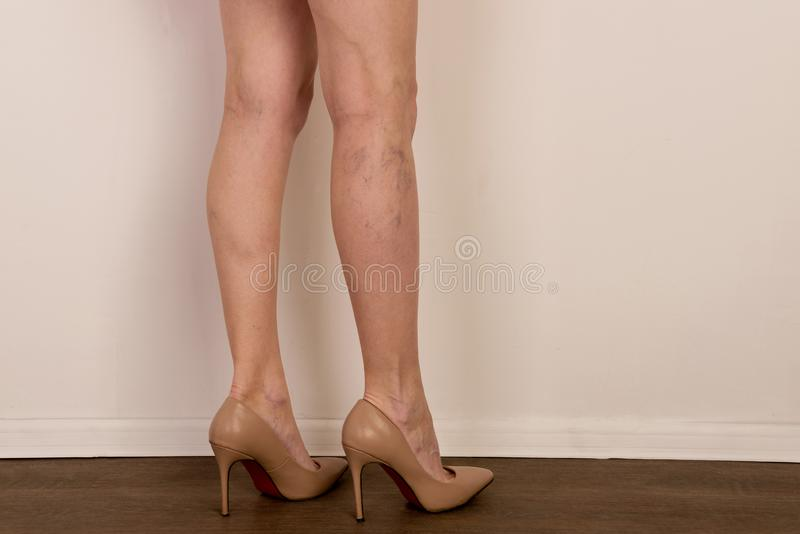 Varicose veins on a slim female legs. Phlebology royalty free stock photo