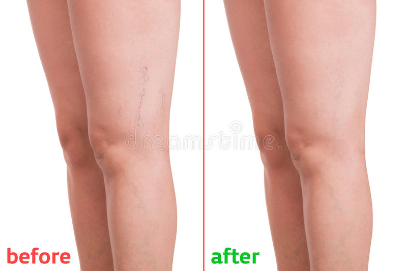 Varicose veins. Treatment of varicose before and after. Varicose veins on the legs royalty free stock images