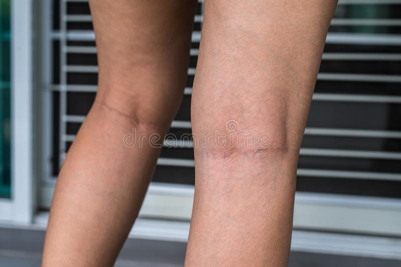 Varicose veins on the woman leg, Normal veins near the skin layer swell out, And blood is accumulated to see a bloody blue or dark. Varicose veins on the woman stock photography
