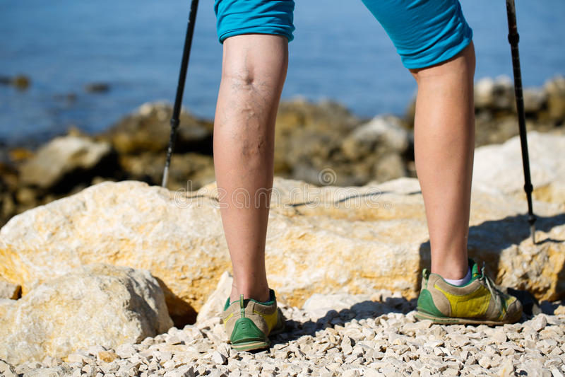 Varicose veins. Woman with varicose veins on a leg walking using trekking poles stock photos