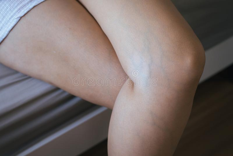 Varicose veins on the womans leg. S royalty free stock photography