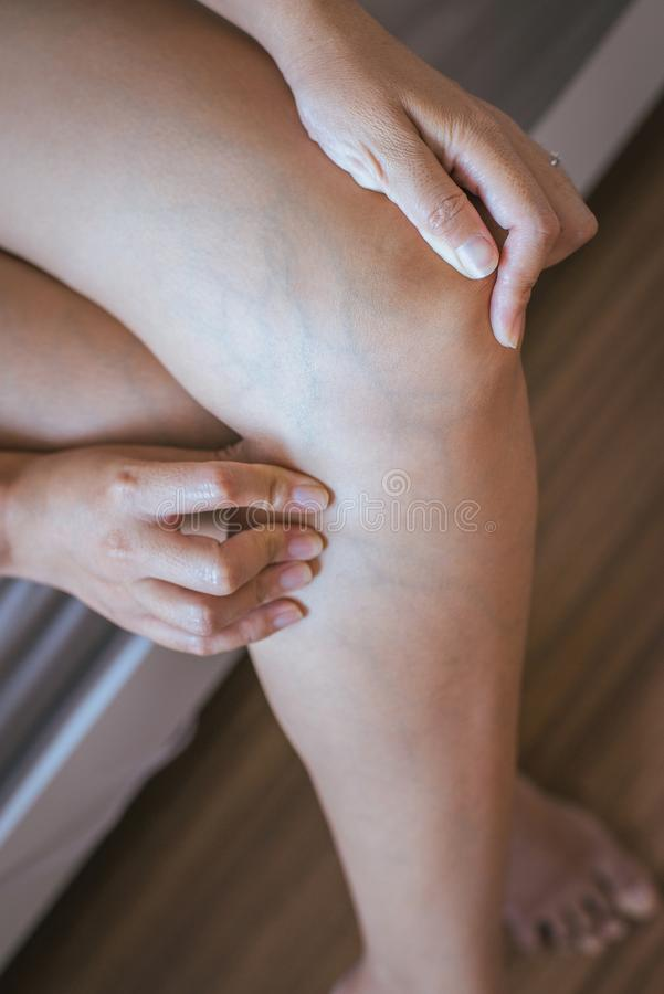 Varicose veins on the womans leg. S,close up royalty free stock photo