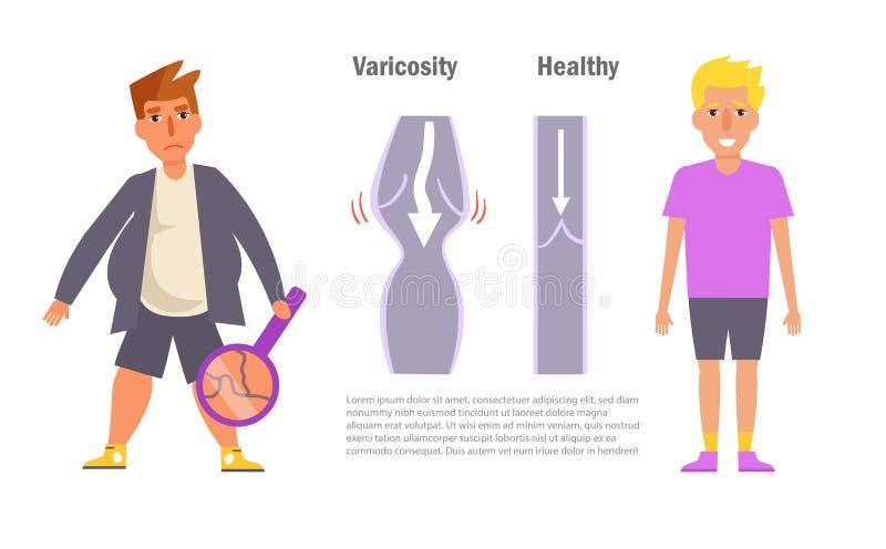 Varicosity Homem Doente e saudável ilustração royalty free