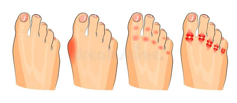 Vario danno di arresto infiammazione ed artrite illustrazione di stock