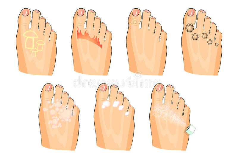 The various injuries of the feet. fungus, burning, warts, sweating. as well as soap, lotion, and spray royalty free illustration