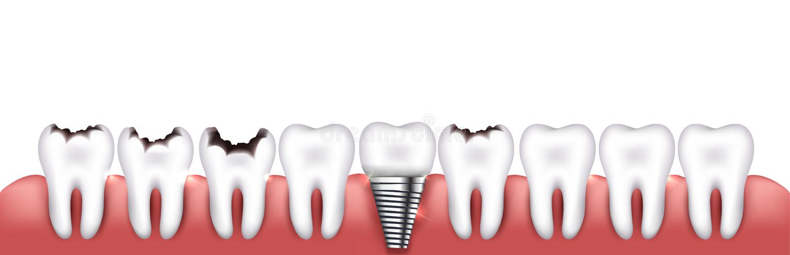 Various teeth conditions royalty free illustration