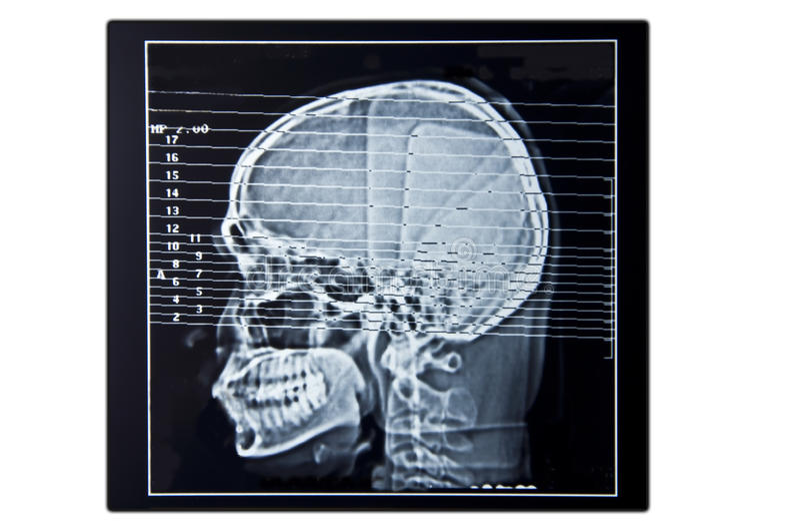 Varredura de cérebro com filme negativo imagens de stock