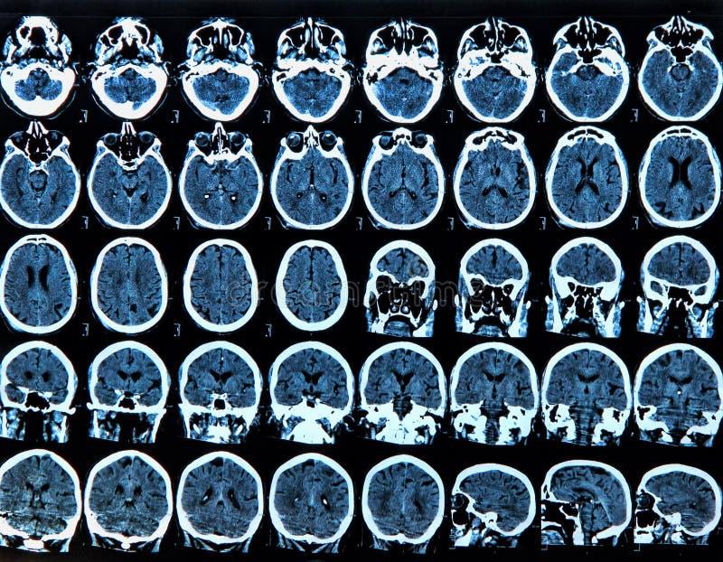 Varredura de cérebro de Mri fotos de stock