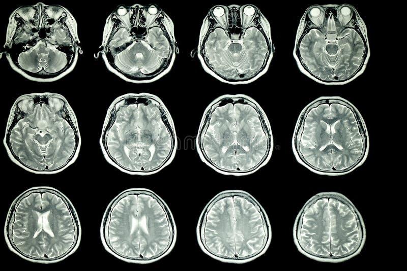 Varredura de MRI do cérebro paciente foto de stock