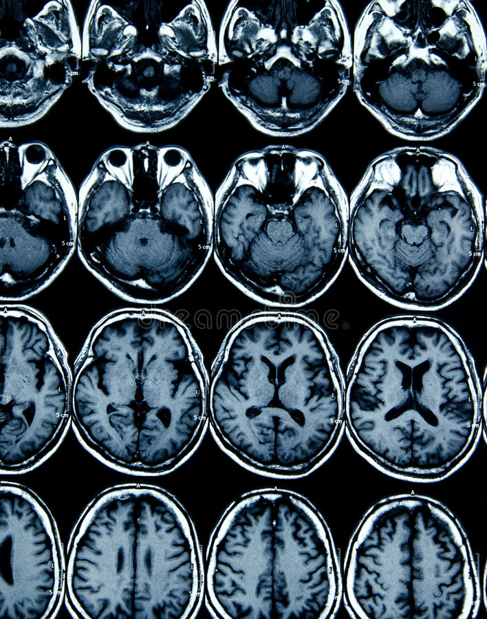 Varredura de MRI do cérebro para o diagnóstico imagem de stock royalty free