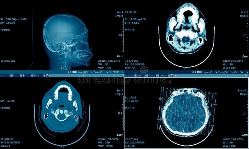 Varredura do cérebro, varredura Brain Series de MRI do CT, fundo médico imagem de stock royalty free